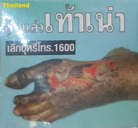 Cigarette Warning (Thailand): foot gangrene