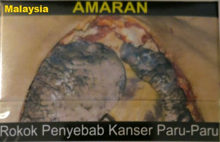 Cigarette Warning (Malaysia): lung cancer