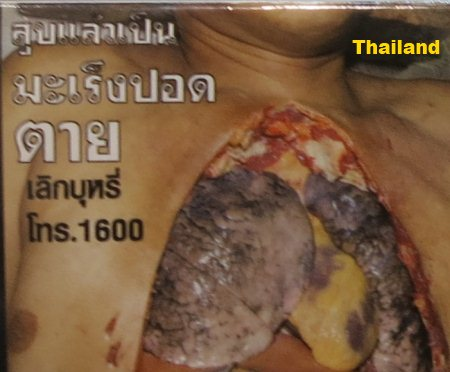 Cigarette Warning (Thailand): lung cancer