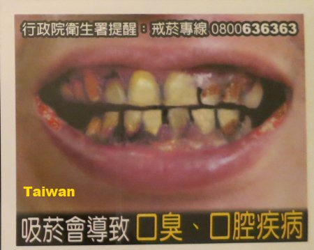 Image result for YELLOW TEETH AND BAD BREATH