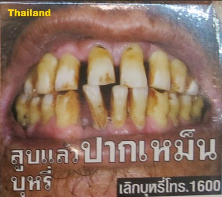 Cigarette Warning (Thailand): bad teeth and breath