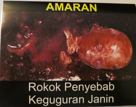 Cigarette Warning (Malaysia): miscarriage
