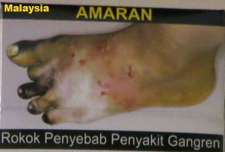 Cigarette Warning (Malaysia): foot gangrene